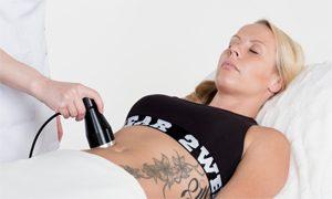 Kavitaatiohoito vatsan alueelle