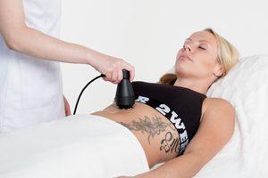 Radiotaajuushoito vatsan alueelle